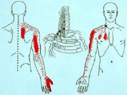 腕から手への影響