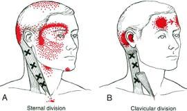 首から目の周りへ疼痛