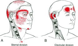 胸鎖乳突筋から目の周りの疼痛