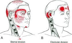 首から目の周りへの影響