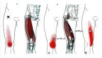 変形性膝関節症へ