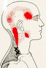 肩から頭へ痛みの分布