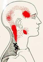肩から頭へ疼痛