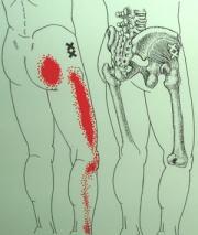臀部からの座骨神経痛
