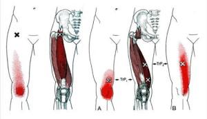 大腿四頭筋と膝の痛みの関係