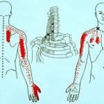 腕の関連痛