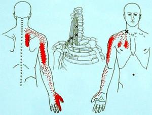 首の筋肉から腕への影響