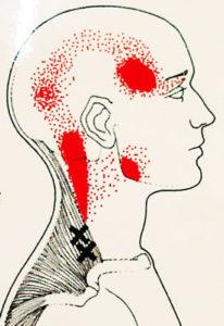 肩付近からの痛み