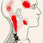 肩の筋肉が固まり頭痛を起こす