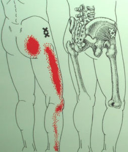 臀筋と坐骨神経痛の関係