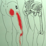 足の外側への痛みや痺れ